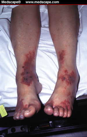 Petechiae and Ecchymoses | USMLEMD